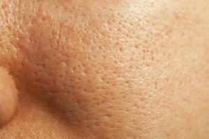 large-pores-on-the-face-and-how-to-get-rid-of-large-pores